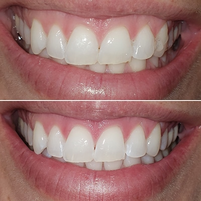 Sinsational Smile Teeth Whitening