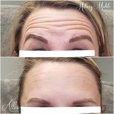 botox after for forehead lines