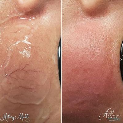 laser spider vein removal