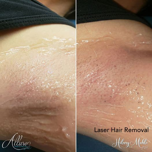 Laser Hair removal immediate before and after