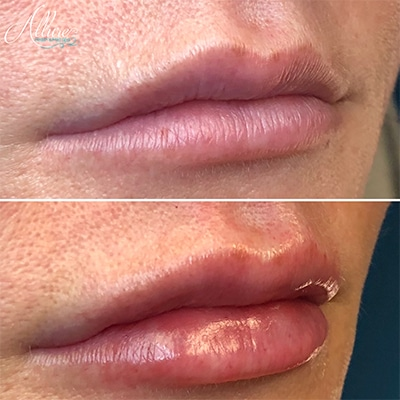 Lux Lip Plump Juvederm