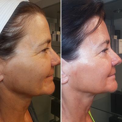 Microcurrent Facial Rejuvenation