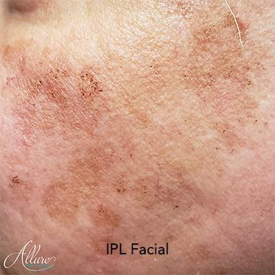 Post IPL facial coffee grounds