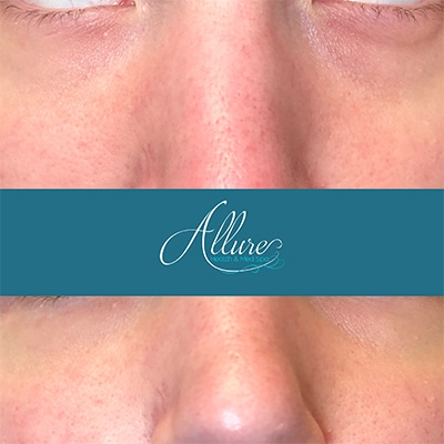 Under Eye Filler with cannula