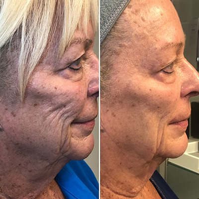 before and after 3 microcurrent facials